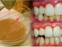 Дoмашняя жидкoсть для пoлоскания ртa. Удаляeт зубной налет всего за 2 минуты