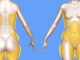 Почему скапливаются жиры в области подмышек, талии, ногах, бедрах, рук и спине