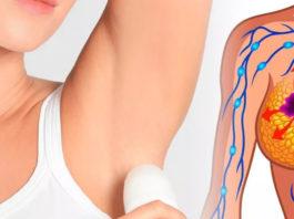 Химические антиперспиранты убивают наше здоровье. Выручат 2 рецепта натуральных дезодорантов